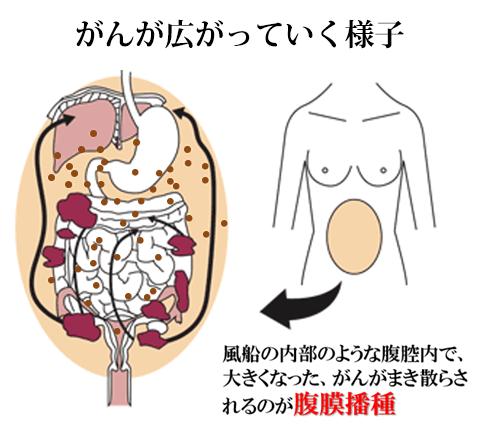 癌性腹膜炎(腹膜播種) | 京都市でがん治療に力を注いでいる村上内科医院