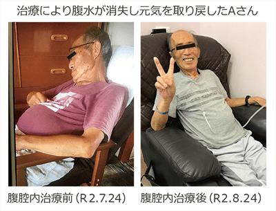播種 名医 腹膜 膵臓がん腹膜転移に対する新たな治療戦略(パクリタキセル+S1):日本からの研究結果